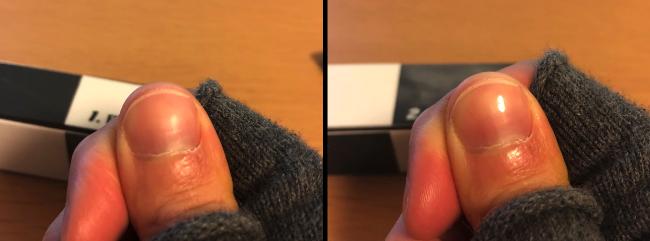 爪磨き後2