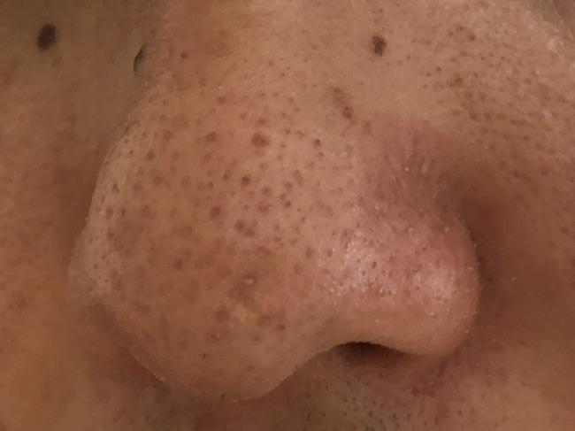 メンズTBC施術前の鼻