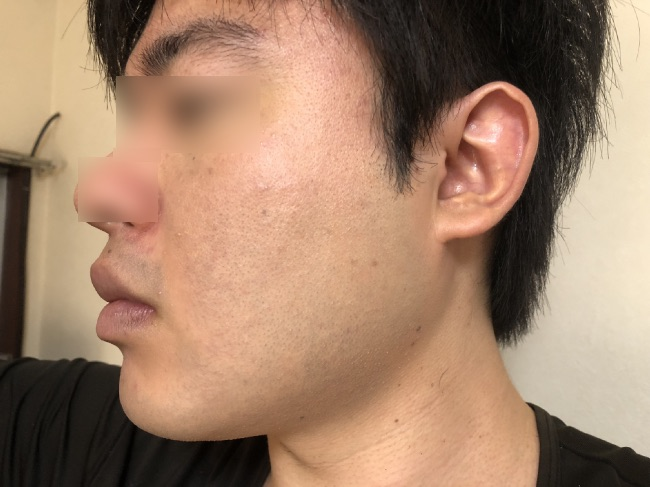 NULL BBクリームを片方塗った後の頬の写真