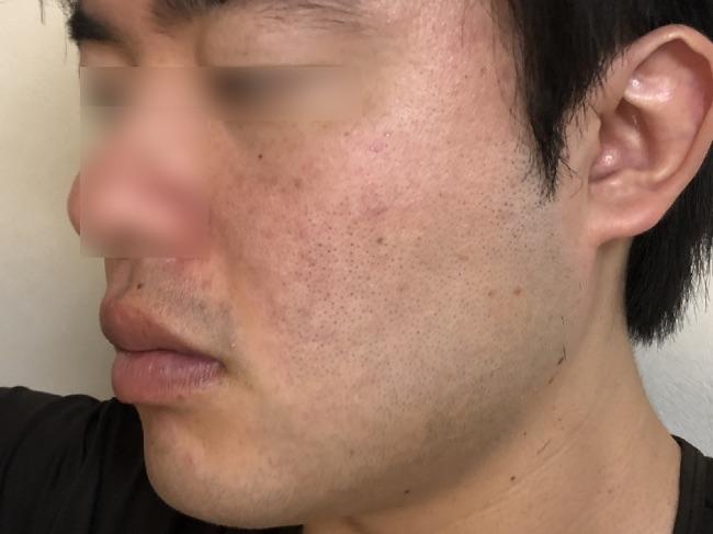 NULL BBクリームを塗る前の頬の写真
