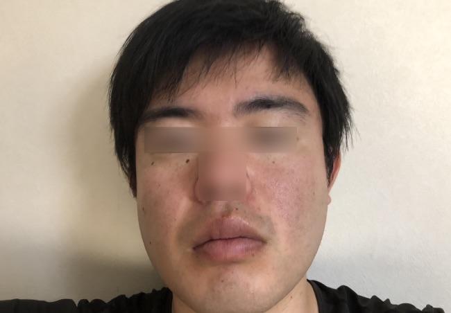 NULL BBクリームを塗る前の顔の全体写真