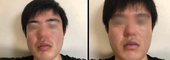 NULL BBクリームを塗る前後の比較写真