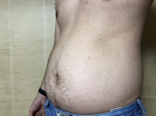 バタフライアブス使用前の正面からの写真