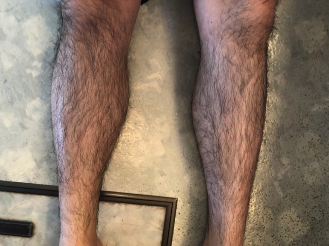 MONVO除毛クリームを塗る前の両足