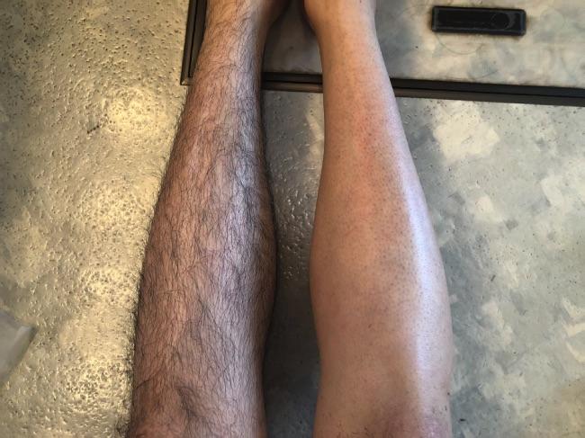 MONOVO除毛クリームを使い終わった後の両足の比較
