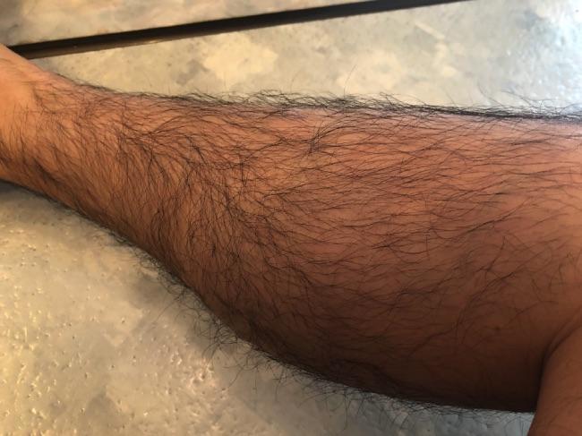MONOVO除毛クリームを使う前の脚
