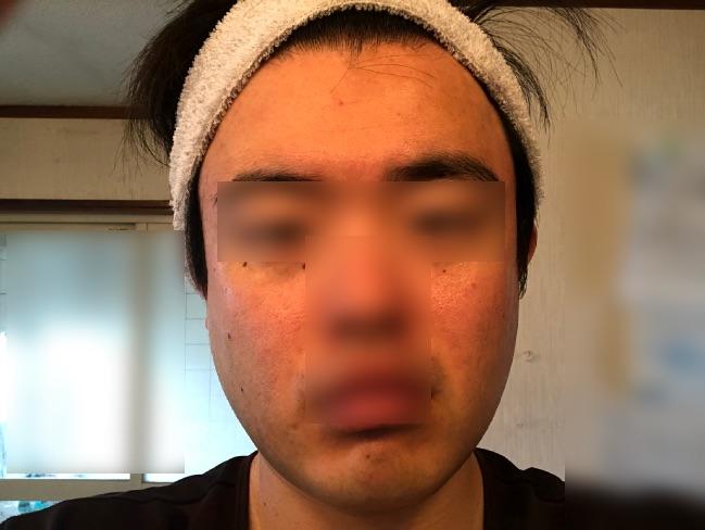 ディープモイスチュア フェースマスクを使い終わった後の顔