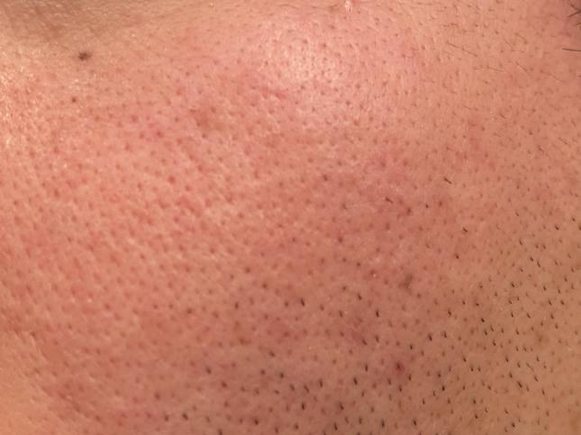 AGICAスキンケアシリーズのオールインワンを肌に塗る前